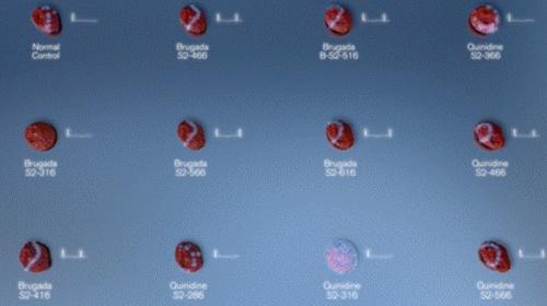 Supercomputació i medicina del futur