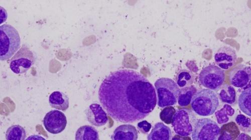 El cáncer: de la biomedicina al paciente
