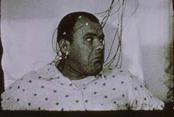 Epileptic Seizure Comparison (Paul Sharits, 1976)
