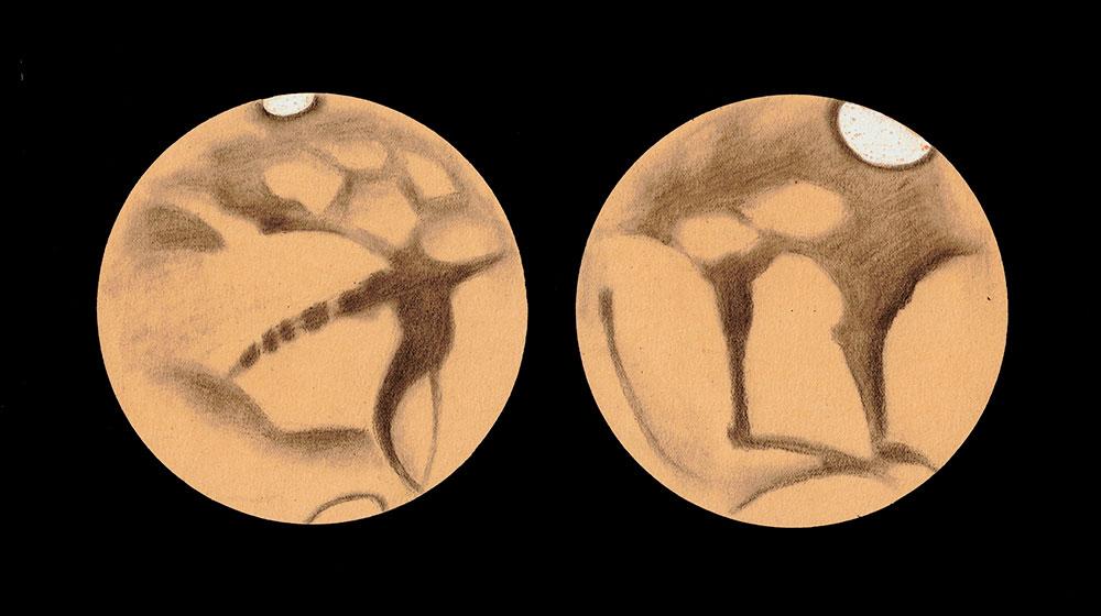Josep Comas i Solà, Dos dibuixos de la mateixa cara de Mart, 1911 i 1913